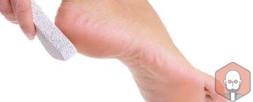 Topuk Çatlaklarına Ne İyi Gelir? – Topuk Catlaklarina Ne Iyi Gelir